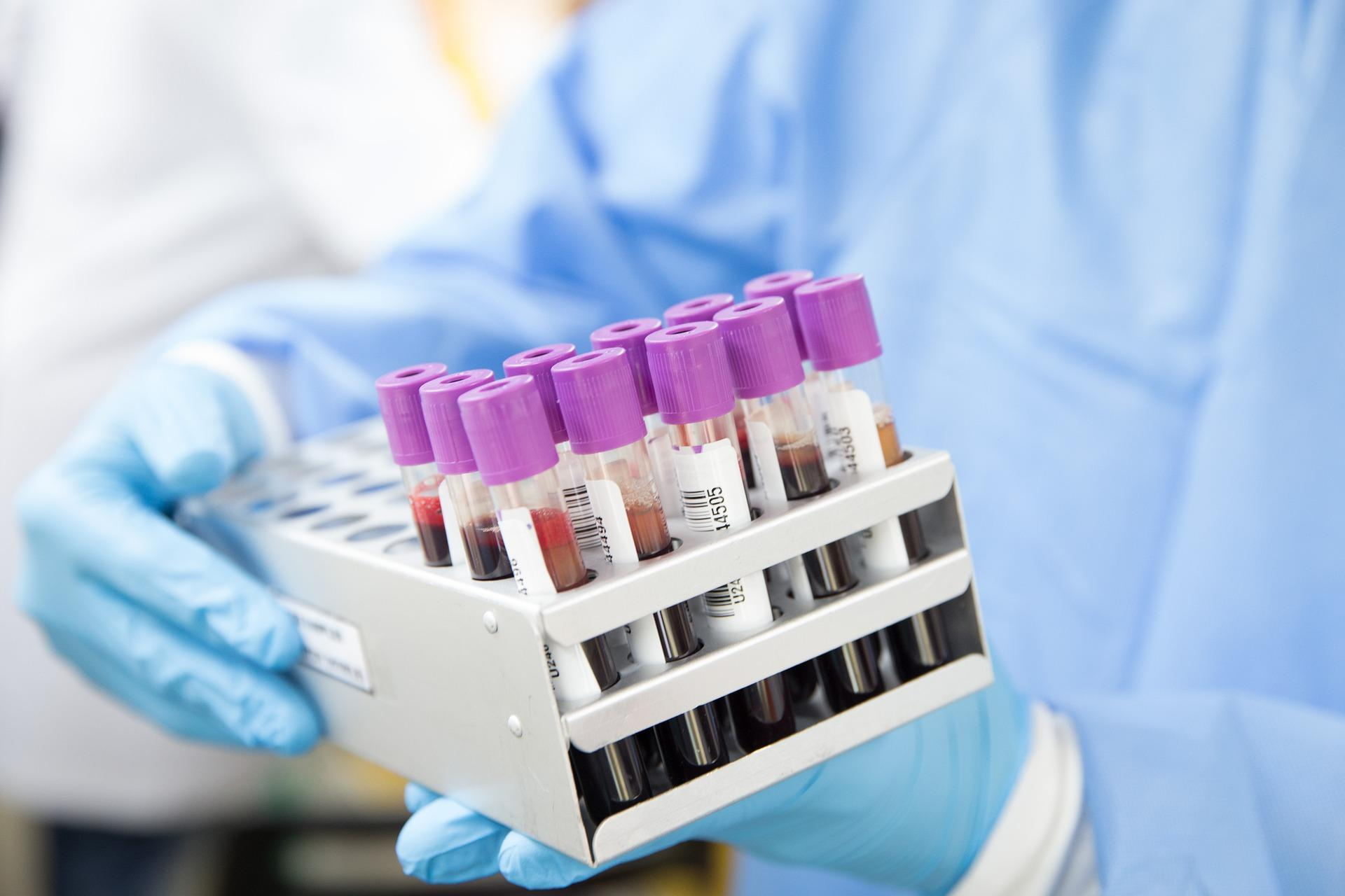 Image of blood vials in a laboratory